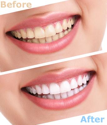 teethwhitening-2
