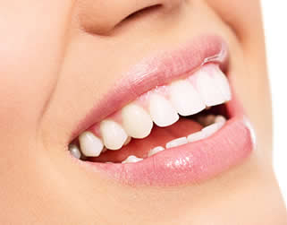 Teeth whitening Central Falls